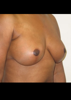 Breast Augmentation with Breast Lift – Case 21