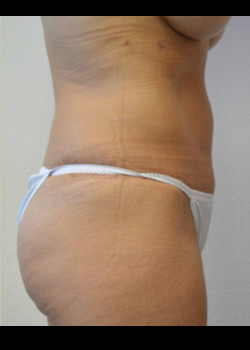 Abdominoplasty – Case 19
