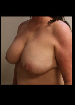 Breast Implant Removal – Case 6