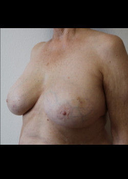 Breast Reconstruction – Case 16