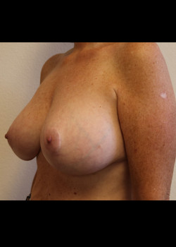 Breast Augmentation with Breast Lift – Case 7