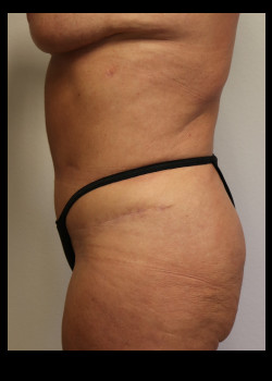 Abdominoplasty – Case 1