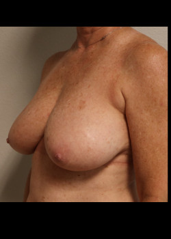 Breast Reconstruction – case 20