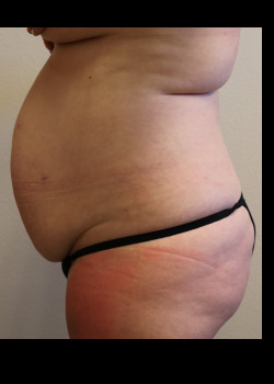 Abdominoplasty – Case 14