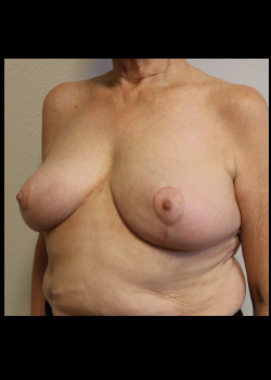 Breast Implant Removal – Case 8