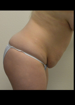 Abdominoplasty – Case 15
