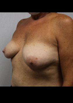 Breast Reconstruction – Case 19