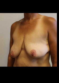 Breast Reconstruction – Case 6